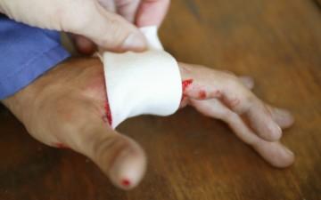 Kanamalarda ilk yardım uygulamaları nelerdir?